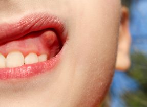 About Dental Cyst Removal