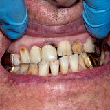 Cause Of HIV Teeth