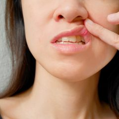 HIV Mouth Sores And Infection
