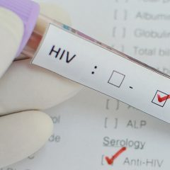 How Do I Know If I Have HIV Positive