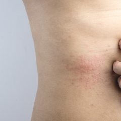 Symptoms And Treatment For HIV Rash On Stomach