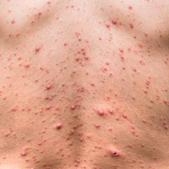 HIV Skin Symptoms