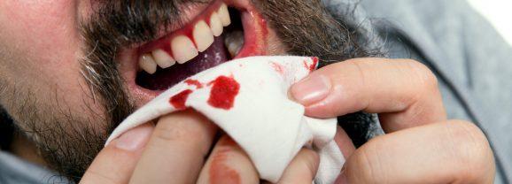 5 Reasons To Take Bleeding Gums Seriously
