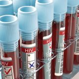 How To Find Out If Someone Is HIV Positive