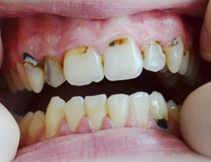HIV patients have higher risk for infections of oral cavity