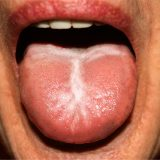 Oral Thrush and HIV
