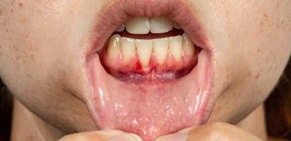 HIV gums: What they look like and how to treat them