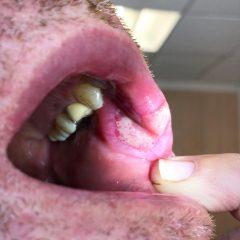 HIV/AIDS:Bone loss around teeth