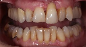 bone loss around teeth