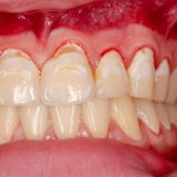 What is HIV Gingivitis?
