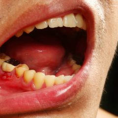 Condition of teeth in HIV patients