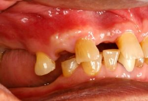 hiv gingivitis