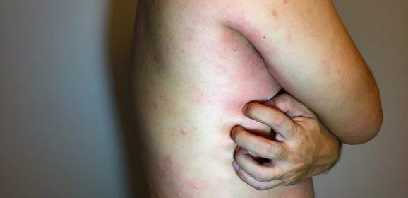 HIV Lesions
