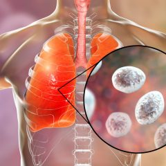 Pneumonia in Aids Patients