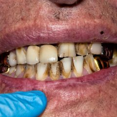 Dental Care For HIV Patients