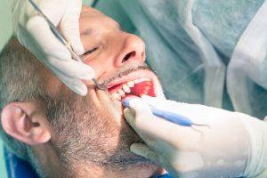 dentures for HIV patients