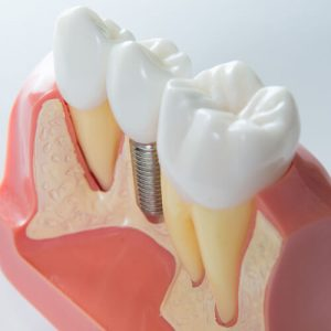 innovative implant and oral surgery