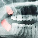 Where Can I Find A Clinic That Does Wisdom Teeth Removal Near Me?
