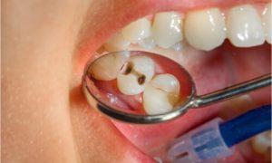 appearance of cavity