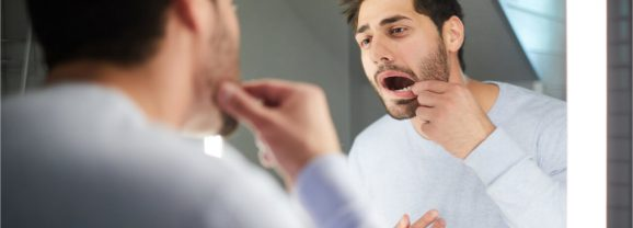 Top 5 Early HIV Symptoms In Mouth To Be Aware Of